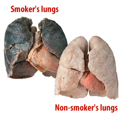 SmokerslungsVsHealthy